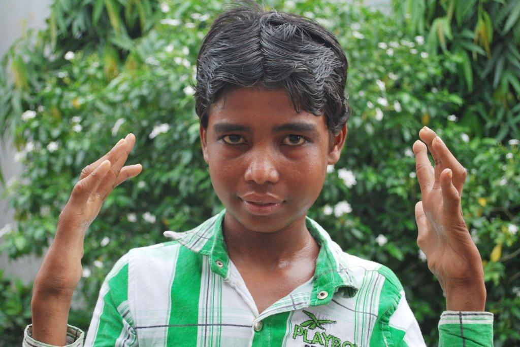 Mohammad, 16, toont zijn geklauwde handen