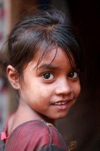 Bij Sonia werd lepra ontdekt toe ze 3 jaar was