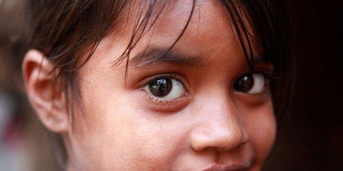 Bij Sonia werd lepra ontdekt toen ze 3 jaar was