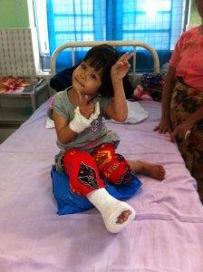 meisje-na-klompvoet-operatie