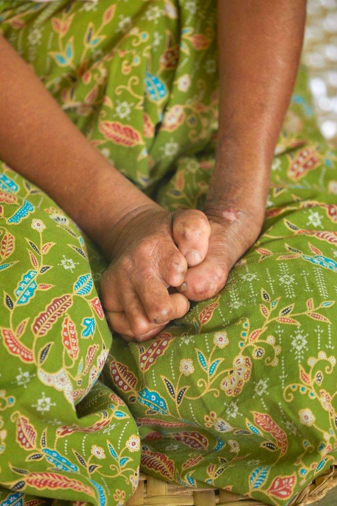 Handen aangetast door lepra.