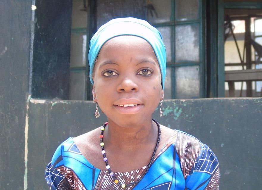 leprapatiënt, kind, Nigeria, lepra