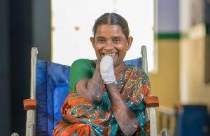 lepra vrouw india