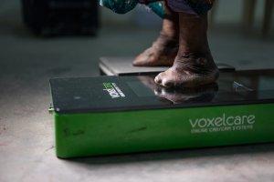 lepra voeten India